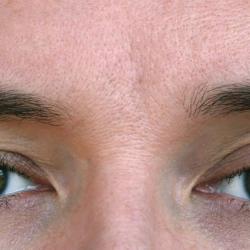 Wat houdt een ooglidoperatie in?