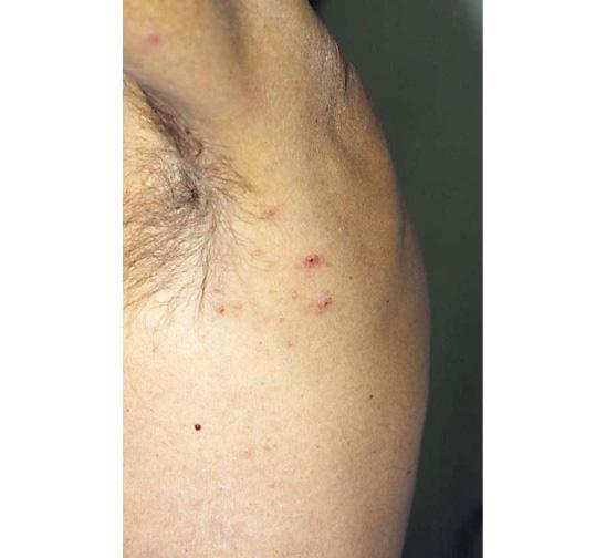 De behandeling van Lymfomatoïde papulosis is met steroïden of een lage dosis MTX.