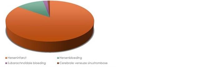 Een herseninfarct is de meest voorkomende vorm van een beroerte.