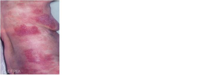 Plaque cutaan ALCL
